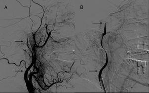 Angiografía cerebral en la que se ve paso de contraste distal a la zona de «pseudooclusión» carotidea hasta alcanzar la porción intracraneal de esta arteria (A y B).