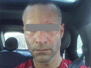 Foto enviada por el paciente tras la realización de ejercicio físico, que muestra anhidrosis y palidez del lado derecho facial, ipsilateral a la disección carotídea, con enrojecimiento y sudoración del lado izquierdo.