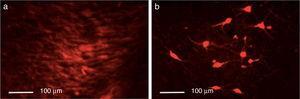 Inmunorreactividad a tirosina hidroxilasa (TH) en el hemisferio intacto (a) y en el hemisferio lesionado (b). Las fotos fueron tomadas a una escala de 1:100μm. Fuente: autor.