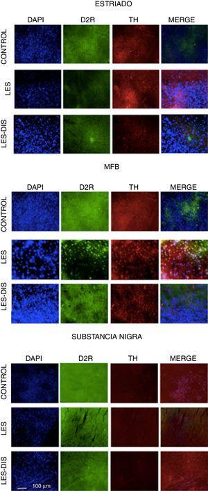 Inmunofluorescencia de triple marcaje para DAPI, TH y receptor dopaminérgico D2 en a) estriado, b) MFB y c) substancia nigra en los grupos tratados. Se puede evidenciar la mayor densidad celular en el estriado y MFB. Las flechas blancas indican la reactividad a los tres marcajes (DAPI+, TH+ D2+). Las fotos fueron tomadas a una escala de 1:100μm. Fuente: autor.