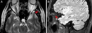 RM cerebral, imagen axial potenciada en T2 (A) e imagen sagital T2 FLAIR (B): se objetiva una pequeña herniación de parénquima cerebral en el polo anterior de lóbulo temporal izquierdo a través de un defecto óseo anterior de la base del cráneo, sugestiva de encefalocele.