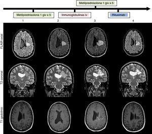 RM cerebral: evolución de la lesión (secuencias FLAIR, T2 y T1 gadolinio) al ingreso (1), tras tratamiento con un pulso de metilprednisolona intravenosa (2), tras tratamiento con inmunoglobulinas intravenosas (3) y tras tratamiento con rituximab (4). Lesión heterogénea con seudohalos agrupados-confluentes (1 y 2) que evolucionan a áreas quístico-malácicas (3 y 4), afectando a corona radiada y centro semioval izquierdos con extensión al cuerpo calloso. Tamaño de 3cm en su diámetro máximo al ingreso (1) que aumenta hasta 4,1cm a pesar del tratamiento (3) y posterior reducción a 3cm tras rituximab (4). No edema perilesional ni efecto masa. Ausencia de realce tras la administración de contraste al ingreso (1) con posterior realce parcheado intra y perilesional a pesar de corticoesteroides e inmunoglobulinas (3) que desaparece tras tratamiento con rituximab (3).