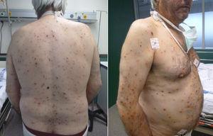 Exantema cutáneo generalizado de la varicela.