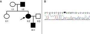A) Pedigrí de la familia afecta de PEH-AD. El caso índice (probandus) está indicado con una flecha. Los cuadrados indican los varones, los círculos indican las mujeres, los símbolos sombreados indican los pacientes afectos de PEH-AD. B) Segmento de la secuenciación del paciente II:2. Una deleción en heterocigosis de 4 nucleótidos (TGTC) se detecta en la posición c.1457 del exón 12 del gen SPAST (c.1457_1460del) que provoca un codón de parada prematuro (Thr486Ilefs*43).