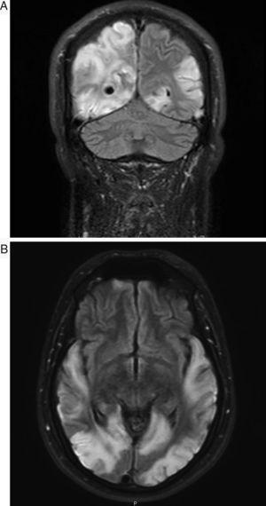 A) Coronal). B) Axial. Lesiones hiperintensas en secuencia de resonancia FLAIR afectando al cortex temporo-parieto-occipital bilateral, que no se corresponden con territorios vasculares.