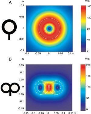 Distribución de los campos eléctricos inducidos por una bobina de estimulación circular (A) y una bobina en forma de 8 (B). La bobina circular tiene 41,5mm de diámetro en la espira interior, 91,5mm en la espira exterior (promedio de 66,5mm) y 15 espiras de hilo de cobre. La bobina en forma de 8 tiene 56mm de diámetro en la espira interior, 90mm de diámetro en la espira exterior (promedio de 73mm) y 9 espiras de hilo de cobre en cada ala. La morfología externa de cada espira se dibuja con líneas blancas discontinuas sobre la imagen de los campos inducidos. La amplitud del campo eléctrico se calcula para un plano 20mm por debajo en un modelo realístico de la bobina (di/dt=A/μs). di/dt representa la derivada de la intensidad de la corriente con respecto al tiempo (pendiente de crecimiento de la corriente), cuya relación viene dada en amperios por microsegundo (A/μs). Si una intensidad pasa de 0 a 40A en 2μs, se obtiene una relación di/dt=40A/2μs; simplificando, 20A/μs.m: metros; V/m: voltios/m. Adaptada de Pascual-Leone y Tormos-Muñoz2.