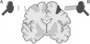Imagen representativa de un corte coronal de un cerebro humano. Modalidades de estimulación magnética transcraneal repetitiva (EMTr) para fomentar la neuroplasticidad. A)EMTr de baja frecuencia (≤1Hz) en el hemisferio cerebral sano, contralateral a una lesión corticosubcortical (zona sombreada más oscura con rayas horizontales), para disminuir la inhibición recíproca ejercida sobre el hemisferio afecto. B)EMTr de alta frecuencia (≥5Hz) en el hemisferio ipsilateral a la lesión para estimular la actividad neuronal y favorecer la reorganización de las redes interneuronales. Adaptada de Edwardson et al.9.