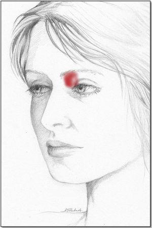 Área de dolor referida por el paciente con afectación de la región troclear.