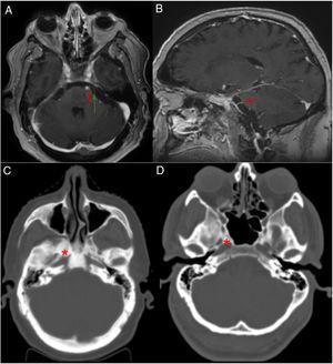 A y B) Resonancia magnética cerebral. Secuencia T1 con contraste: A) corte axial, B) corte sagital. Flecha roja: nervio abducens izquierdo, emergiendo desde la cisterna prepontina, hipercaptante probablemente por afectación en el conducto de Dorello. Flecha verde: nervio trigémino, sin captación de contraste. C y D) TC craneal con ventana hueso. Corte axial: C) se observa aumento difuso de la densidad ósea a nivel del clivus y esfenoides (asterisco rojo) sugestivo de infiltración ósea metastásica, D) imagen de paciente control, sin aumento de la densidad ósea en base de cráneo.