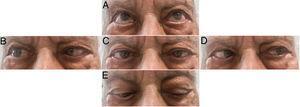 A) Supraversión normal. B) Versión a la derecha con abducción parcial del ojo derecho. C) Mirada centrada, con endotropia bilateral. D) Versión a la izquierda con leve déficit de abducción del ojo izquierdo. E) Infraversión; se observa tendencia a endotropia del ojo derecho. Convergencia conservada no presente en la figura. Exploración registrada a los 14 días de tratamiento, con mejoría parcial, principalmente del nervio abducens izquierdo que es el hipercaptante en la RM cerebral. Persistía diplopía.