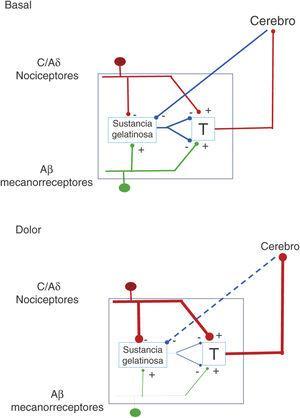 Explicación de la teoría de la compuerta del dolor. A la izquierda, en estado de equilibrio; a la derecha, bajo percepción de dolor. T: primera transmisión central.