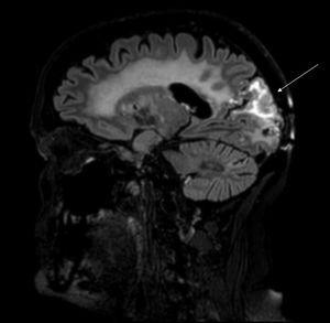 Secuencia T2 de RM de cráneo, corte sagital. Engrosamiento e hiperintensidad cortical con edema subcortical y realce de tipo gira.