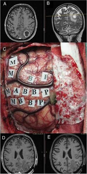 Imágenes de resonancia magnética en secuencia T1 axial con contraste (A) y T2 coronal (B), que muestran una tumoración correspondiente a glioblastoma situado en el parietal izquierdo, en el margen posterior del lóbulo central. Se empleó cirugía con mapeo cerebral intraoperatorio para la identificación de córtex motor (C) gracias a lo cual se logró una extirpación completa como muestra la secuencia T1. Resonancia magnética postoperatoria con (D) y sin contraste intravenoso (E) en ausencia de déficit neurológico postoperatorio.