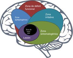 Superposición de zonas de importancia epiléptica.