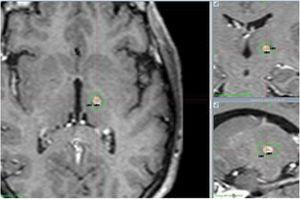 Control con resonancia magnética (RM) cerebral a los 12 meses. RM cerebral en secuencias T1 cortes axial, coronal y sagital. Lesión ovalada milimétrica hipointensa captante de contraste hiperintenso.