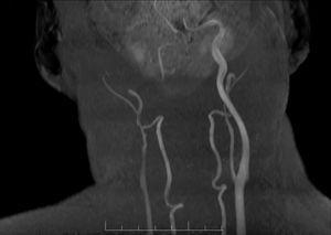 Angio-RM que muestra oclusión de la arteria carótida interna derecha hasta el origen a nivel de la bifurcación.