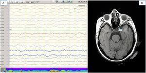 Pruebas complementarias (paciente número 16). 1A) Electroencefalografía de vigilia, que muestra un enlentecimiento difuso de la actividad bioeléctrica cerebral. 1B) Resonancia magnética craneal (RMN) secuencia FLAIR, que muestra una hiperintensidad focal de sustancia blanca en lóbulo temporal izquierdo.