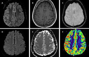 Brain 1.5T MRI of FLAIR-hyperintense Lesion in Anti-MOG-associated Encephalitis with Seizures. T2-fluid attenuated inversion recovery (FLAIR) imaging showing right parietal cortical gyri and some sulci hyperintensity and swelling without involvement of adjacent juxta-cortical white matter (A). Axial T1-weighted post-gadolinium imaging shows right parietal leptomeningeal enhancement (B). Axial susceptibility weighted imaging shows hyperintense vessels in the same region due to decreased oxygen extraction secondary to hyperperfusion (C) confirmed by perfusion imaging sequences (F). Diffusion restriction in posterior parietal gyri (D,E).