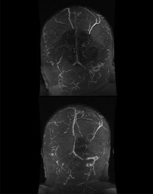 Angio-RM cerebral que muestra trombosis venosa extensa, que afecta a senos longitudinal superior, transverso y sigmoide de ambos hemisferios (A). Control en un mes (B) con recanalización parcial del seno longitudinal superior, transverso y sigmoide izquierdos tras tratamiento con dabigatrán.
