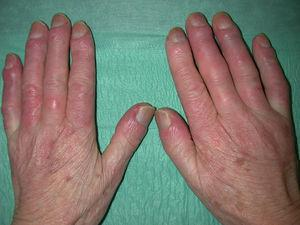 Marcado engrosamiento de los dedos en un paciente con esclerosis sistémica.