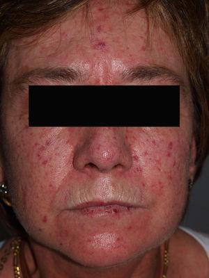 Telangiectasias faciales dispersas en la cara de una paciente con síndrome de calcinosis, Raynaud, esofagitis, esclerodactilia y telangiectasias.