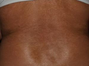 Lesiones hiperpigmentadas en la espalda de una paciente con esclerosis sistémica.