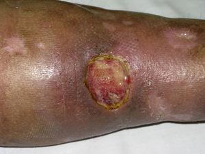 Úlceras cutáneas en una paciente con CM tipo II.