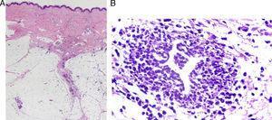 A) El eritema nudoso es la paniculitis de predominio septal más frecuente y no se acompaña de vasculitis. B) Granuloma de Miescher. (Por cortesía de Santos-Briz A, MD).