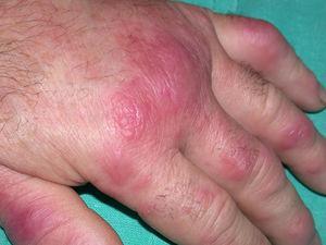 Síndrome de Sweet. Pápulas y placas eritematosas, edematosas y brillantes localizadas en dorso de mano. Las lesiones tienden a confluir y son dolorosas.