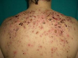 Acné fulminans. Nódulos inflamatorios, dolorosos y acompañados de signos sistémicos como fiebre y leucocitosis. Las lesiones aparecieron durante el segundo mes de tratamiento de un acné nódulo quístico grave con isotretinoína por vía oral.