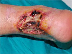 Pioderma gangrenoso ulcerativo en tercio inferior posterior de la extremidad inferior derecha, con exposición del tendón de Aquiles.