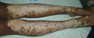 Máculas acrómicas confluentes en paciente con vitíligo. La afectación suele ser bilateral y simétrica. Las lesiones tienen unos bordes geográficos característicos.