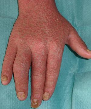 Dactilitis del 4.° dedo de la mano derecha en paciente con artritis reactiva. Pápulas eritematosas psoriasiformes y distrofia ungueal, con onicolisis en el 3.° dedo.