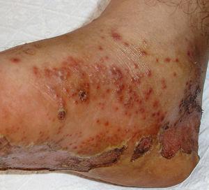 Queratodermia blenorrágica con afectación de la planta del pie izquierdo, con pústulas indistinguibles de las observadas en la psoriasis pustulosa.