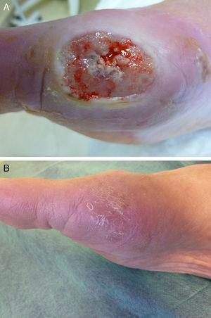 Paciente 1. A) Lesión en cara interna del pie, previa al tratamiento. B) Curación de la lesión a los 3 meses de tratamiento.