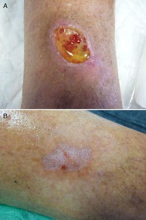 Paciente 2. A) Úlcera pretibial durante el primer tratamiento, en la que se aprecia el suero plaquetario. B) Curación de la lesión al mes.