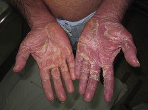 Descamación laminar palmar en varón con eritrodermia psoriásica.
