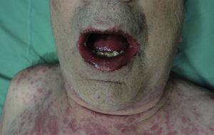 Paciente con síndrome de Stevens-Johnson. Observe el compromiso de mucosas.