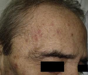 Paciente con múltiples queratosis actínicas en la frente.