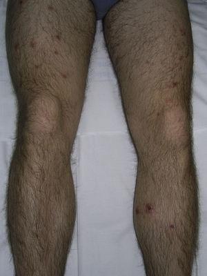 Pápulas inflamatorias, pústulas y costras diseminadas por las extremidades inferiores en un paciente con foliculitis.