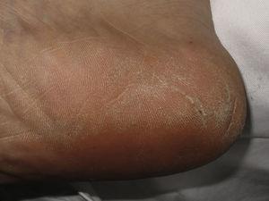 Hiperqueratosis difusa en el talón secundaria al uso de calzado deportivo inapropiado.