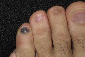 Hematoma subungueal en cuarto dedo del pie tras una excursión de 50km.