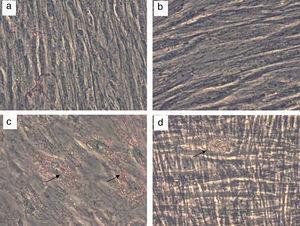 Diferenciación adipogénica y osteogénica de CMM-CUh. Las CMM-CUh se sembraron en placas de 6 pocillos y se cultivaron hasta la confluencia. En este punto las células control se siguieron cultivando con medio de crecimiento (a y c) o se añadieron factores de diferenciación adipogénicos (b) u osteogénicos (d). A los 21 días de tratamiento las células fueron fijadas y teñidas con Oil Red O para evidenciar depósitos de lípidos intracelulares (a y b) o con Alizarin Red para evidenciar depósitos de calcio (c y d). Las flechas marcan la presencia de depositos de lipidos (c) y de calcio (d).