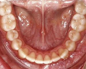 Vista arcada inferioară intraorală cu dinți rotiți și aglomerat, în special dinții 33 și 43 (a). Atașamentele au fost plasate pe dinții 33 și 43. Situația intraorală Odată ce tratamentul este terminat: Arcade formată după neaplicarea caninilor și incisivilor (b).
