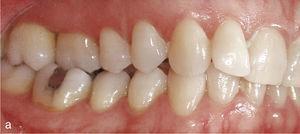 Vista lateral dreta amb mossegada creuada de el parell de dents 16-46 en una oclusió classe II (a). Situació després de corregir la mossegada creuada i de configurar una oclusió classe I (b).