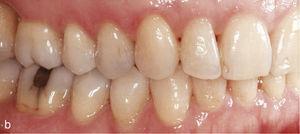 Vista lateral dereita con mordida de dentes cruzada 16-46 nunha oclusión Clase II (a). Situación despois de corrixir a mordida de mordida e configurar unha oclusión de clase I (b).
