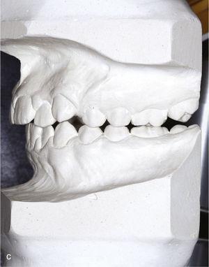 Modelos montados en relación céntrica para la planificación del tratamiento (diente 53 persistente).