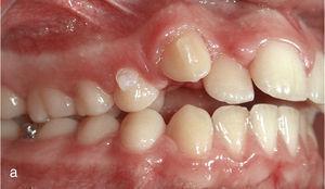 Situația intraorală la începutul tratamentului cu Invisalign și Ataches în dinții 13 și 23 și paranteze pentru clasă II elastică pe dinții 14, 24, 36 și 46.