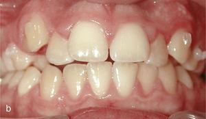 Situația intraorală la începutul tratamentului cu Invisalign și Ataches pe dinții 13 și 23 și paranteze pentru elastica de clasă II din dinții 14, 24, 36 și 46.