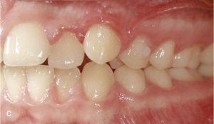 Situația intraorală la începutul tratamentului cu Invisalign și Ataches pe dinții 13 și 23 și paranteze pentru elastica de clasă II pe dinți 14, 24, 36 și 46.